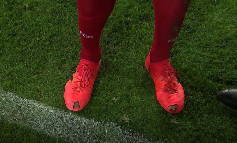 لهذا السبب خاض هوميلس مباراة إنجلترا بحذاء مثقوب !